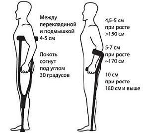 Конструкция костылей
