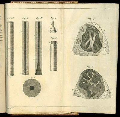 Древний стетоскоп